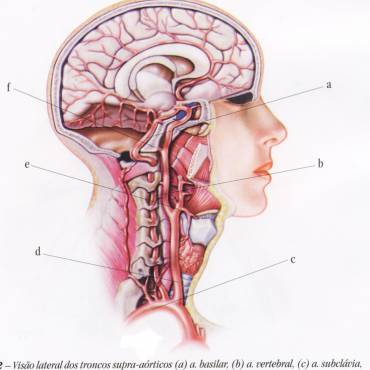 Estenose e Obstrução de Carótidas