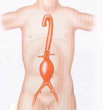Aneurismas de Aorta