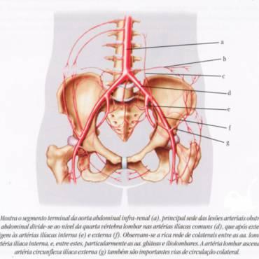 Obstrução Arterial Crônica de Membros Inferiores